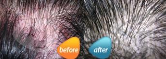 두피지루성피부염.jpg